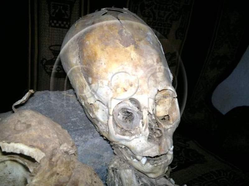 Cuzco cranio allungato