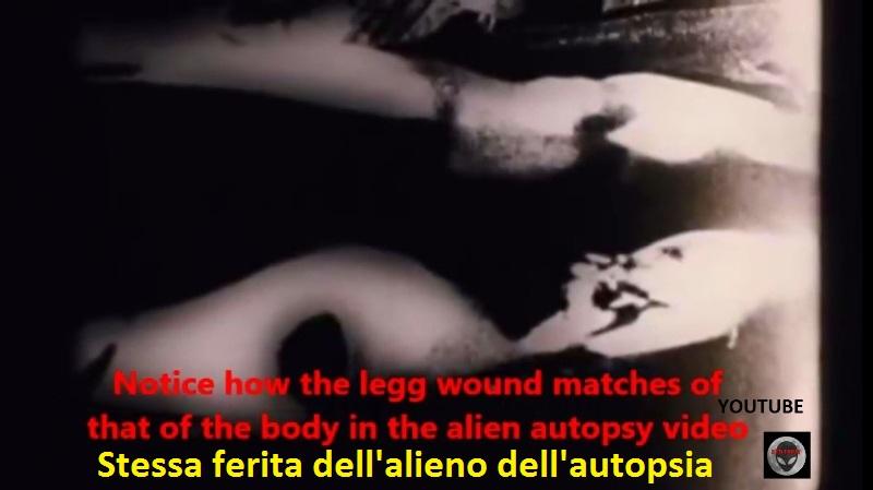 6-la-ferita-sulla-gamba-e-identica-a-quella-del-famoso-filmato-dellautopsia