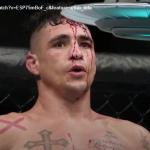 DIEGO SANCHEZ. CAMPIONE UFC